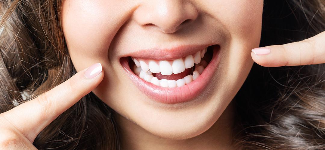 tipos de gingivitis y como identificarlos header